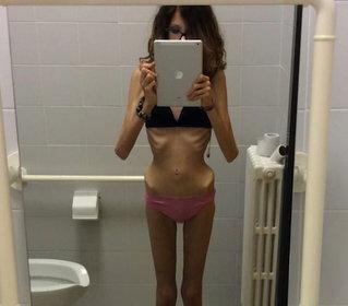 """Uomini che inducono all'anoressia: """"Voglio vedere le tue ossa"""""""